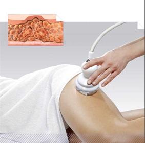 Endodermická masáž pojivové tkáně